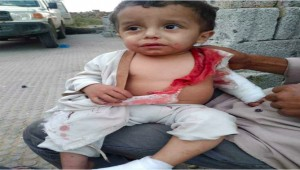 One child killed and two other injured in Al-Sollu district, Taiz.
