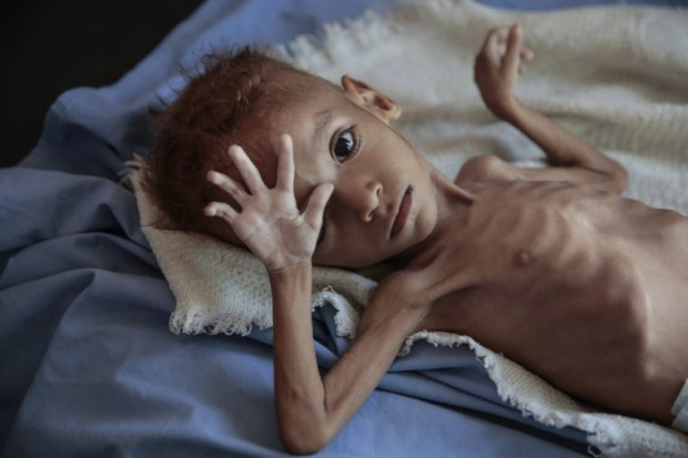 UN balks as Yemen rebels try to control the flow of aid