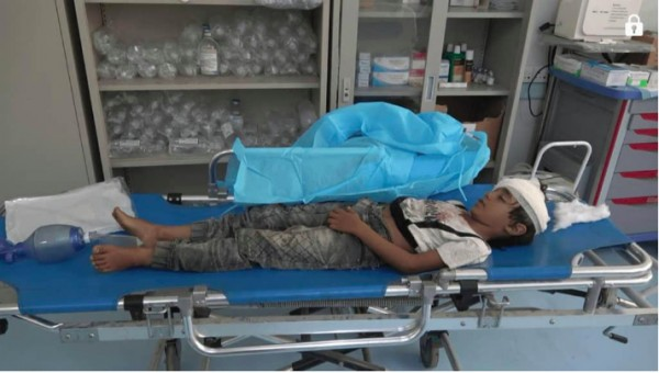One child among casualties of IED explosion south of Hodeida