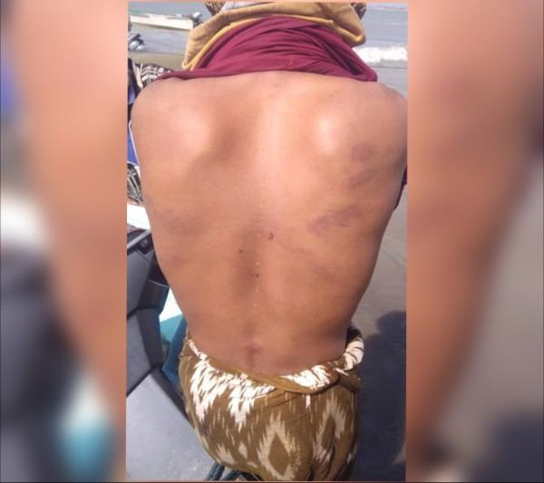 Fishermen detained and tortured by Saudi-led coalition and Yemeni soldiers